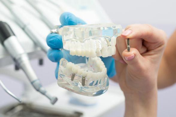מודל, דגם שיניים, השתלות שן, טיפול שורש