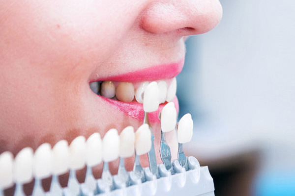 ציפוי שיניים, חרסינה, למינייט