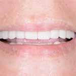 Doctor Q, רשת מרפאות שיניים, יישור שיניים, שיחזור שיניים